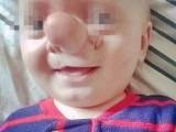 """Ollie, il bambino soprannominato """"Pinocchio"""":  il cervello gli cresce dentro il naso _ollie2"""
